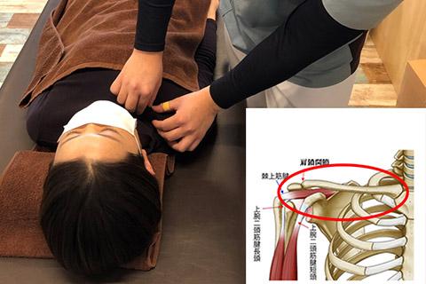 鎖骨モビライゼーション(肩の補助関節の改善)