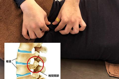 椎間関節モビライゼーション